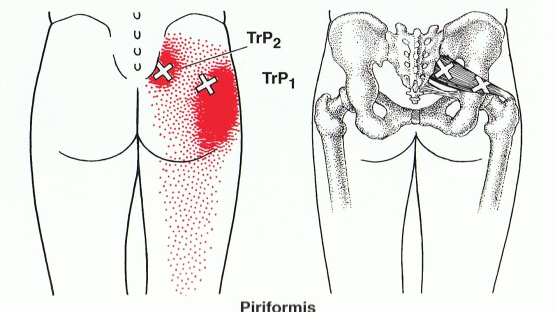 piriformis trigger point diagram