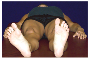 Foot everted, indicating tight piriformis