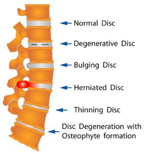 Cervical disc damage